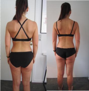 anatomiske implantater før og efter billeder store bryster porno