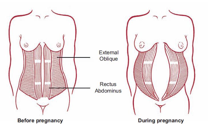 maveøvelser gravid