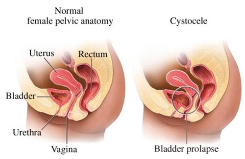 nedsunken livmoder symptomer